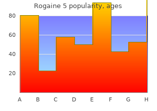 buy 60 ml rogaine 5 overnight delivery